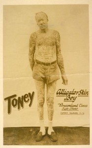 Coney Island Dreamland Side Show Freak Toney Alligator Skin Boy